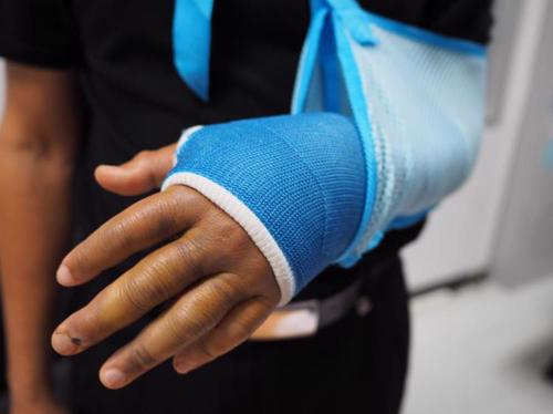 A person with an arm injury in a cast.
